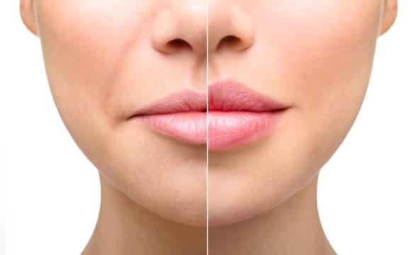 Омоложение губ